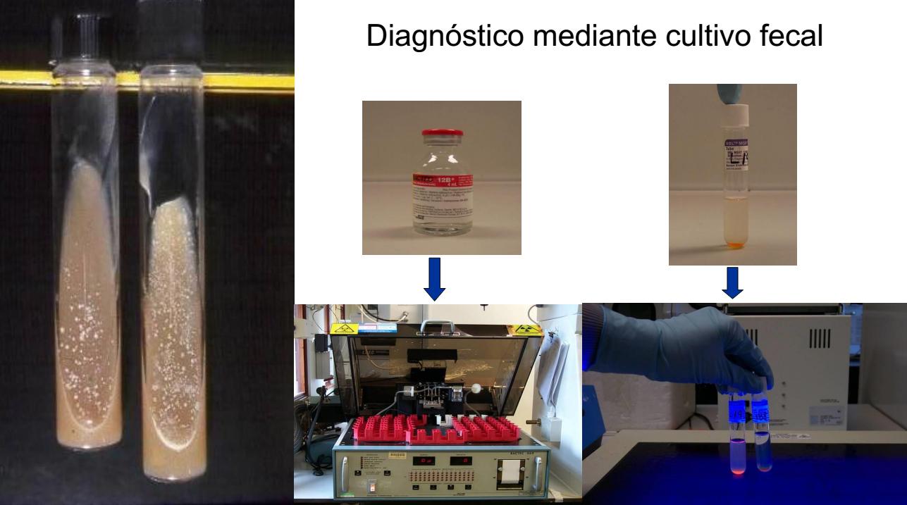 El aislamiento de Mycobacterium avium subsp. paratuberculosis sigue siendo la técnica más sensible de diagnóstico. En la imagen se muestran los tubos de cultivo en medio solido clásicos y los más modernos en medio líquido con indicadores que reducen el tiempo de incubación